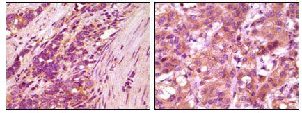 Fibulin 5 Antibody (MA5-15292)