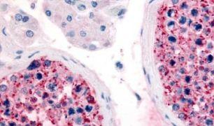 FZD9 Antibody (PA5-33564)