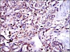G6PD Antibody (MA5-15918)