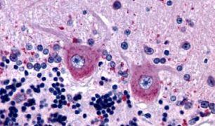 GABBR1 Antibody (PA5-33566)