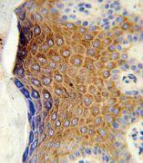 GALNT3 Antibody (PA5-26217)