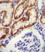 GATM Antibody (PA5-23946)
