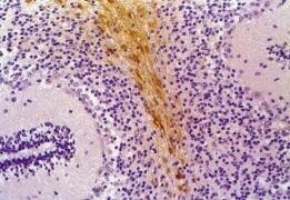 GFAP Antibody (MA1-19170)