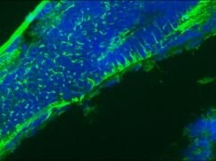GFAP Antibody (OPA1-06100)