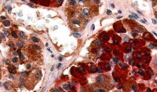 GHRHR Antibody (PA5-33583)
