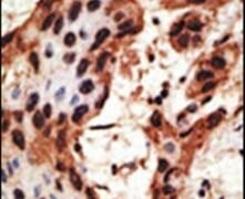Connexin 30 Antibody (PA5-11640)