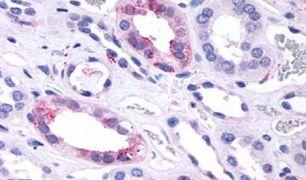 GPR146 Antibody (PA5-32800)