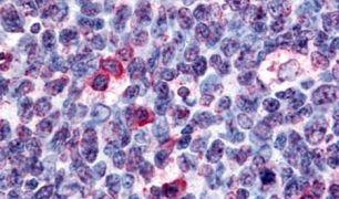 GPR146 Antibody (PA5-33635)