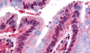 GPR160 Antibody (PA5-32806)