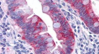 GPR31 Antibody (PA5-33692)