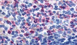 GPR43 Antibody (PA5-33718)