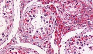 GPR64 Antibody (PA5-33751)