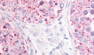GPR68 Antibody (PA5-32837)