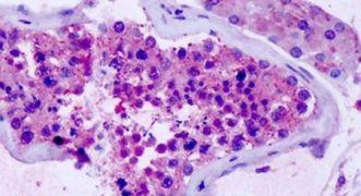 GPR75 Antibody (PA5-33761)