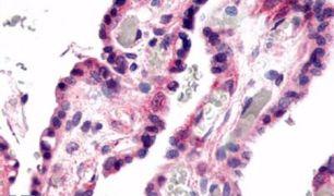 GPR78 Antibody (PA5-33763)
