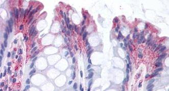 GPR82 Antibody (PA5-33768)