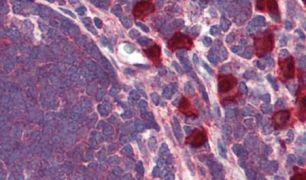 GPR88 Antibody (PA5-32844)