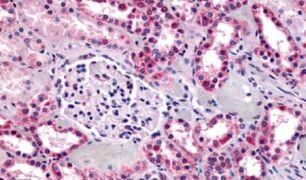 GPR91 Antibody (PA5-33788)