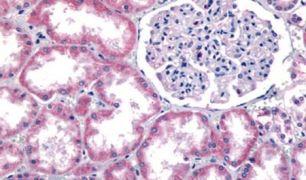 GPR91 Antibody (PA5-33790)
