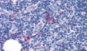 GPR97 Antibody (PA5-33791)