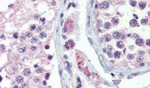 GPR98 Antibody (PA5-33792)