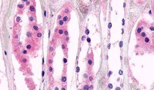 GPR98 Antibody (PA5-33793)