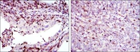 GRK2 Antibody (MA5-15840)
