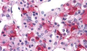 mGluR3 Antibody (PA5-33820)