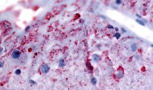 mGluR6 Antibody (PA5-32862)