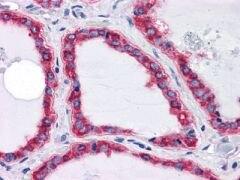GRP78 Antibody (MA5-15619)