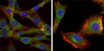 GSK3 beta Antibody (MA5-15597)