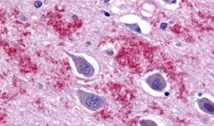 GALR1 Antibody (PA5-33570)