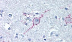 GALR3 Antibody (PA5-33576)