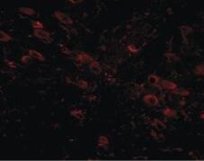 GLE1 Antibody (PA5-20660)