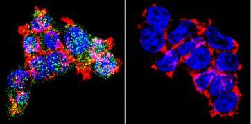 Glucocorticoid Receptor Antibody (PA1-510A)