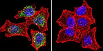 Glucocorticoid Receptor Antibody (PA1-511A)