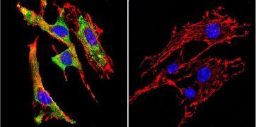 GRP94 Antibody (MA3-016)