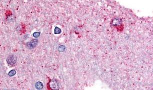 GPBB Antibody (PA5-32782)