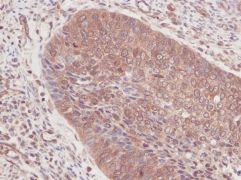 GM-CSF Antibody (PA1-84972)