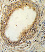 HAPLN1 Antibody (PA5-26792)