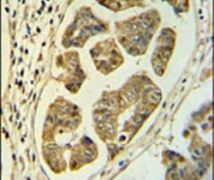 HCCS Antibody (PA5-26880)