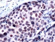 HDAC1 Antibody (PA5-32443)