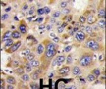 HDAC6 Antibody (PA5-11240)