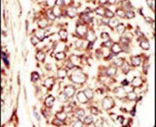 ErbB2 Antibody (PA5-14632)