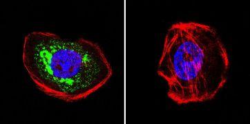 HIP Antibody (MA3-413)