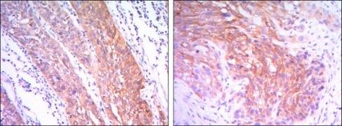 HK2 Antibody (MA5-15679)