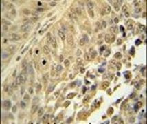hnRNP C Antibody (PA5-24221)