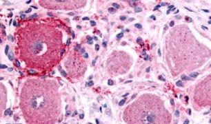 HTR1D Antibody (PA5-33296)