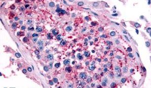 HTR1E Antibody (PA5-32863)