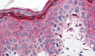 HTR1E Antibody (PA5-33298)